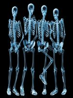 Sky Skeletons